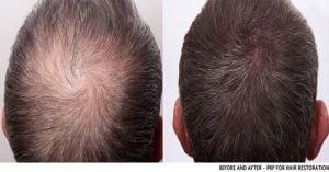 regrow Mens-PRP-Hair loss 2